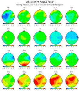 Seguimiento de Michelle escaner en febrero de 2013 después de los cuatro días de Taller Avanzado. Las áreas verdes en las imágenes representan la actividad normal y equilibrada del cerebro.