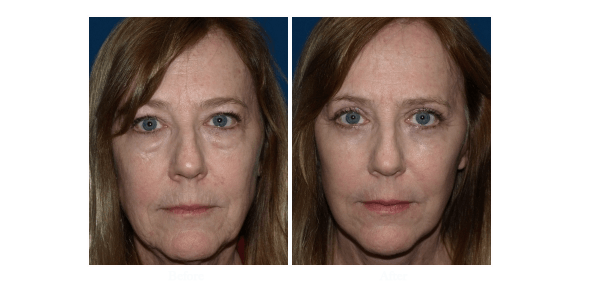 Eyelid Surgery Patient Before And After Photo Worked Performed By Dr Roy David