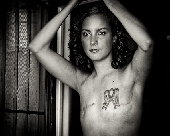 Woman with tattoo over double mastectomy