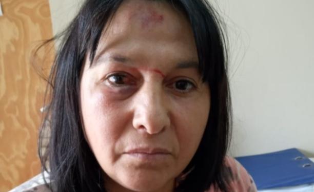 San Genaro: Mujer fue brutalmente golpeada