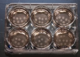 growing organoids in petri dishes