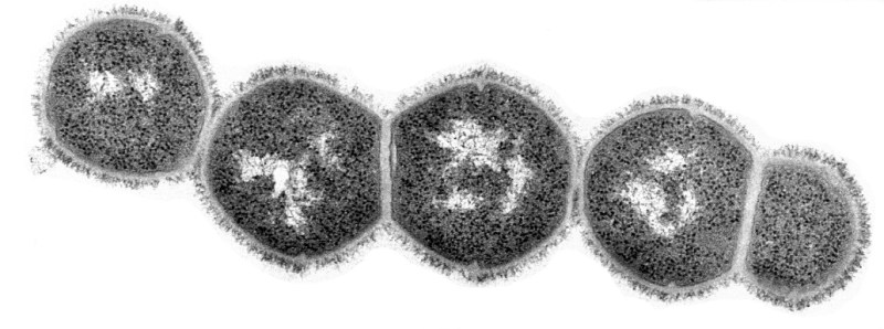 Streptococcal bacteria - you can clearly see their polysaccharide coats. Image credit: The Rockefeller University