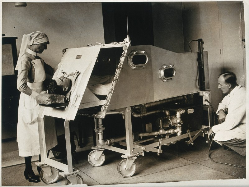 An iron lung, St. Bartholomew's Hospital, London: a patient inside a Drinker respirator, attended to by a nurse and a doctor. Photograph, ca. 1930( ?). Credit: Wellcome Collection