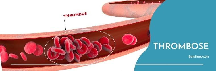 wie erkenne ich eine thrombose