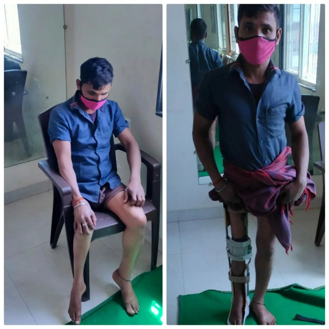 Prosthetic Limbs Donated Sanjay Anand Charitable Foundation 03 April