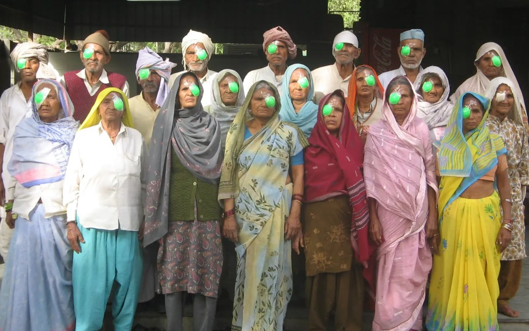 30200 Cataract Surgeries Completed