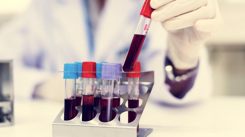 Allergy Testing & SAAT/SLIT Treatments
