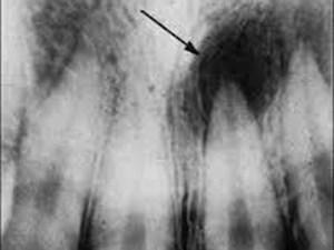 X線写真 歯根のう胞