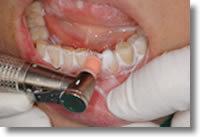 歯の質を強くするためにフッ素を塗布