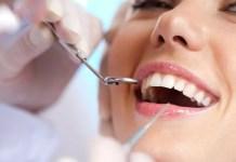 Пародонтоза и зъбен камък