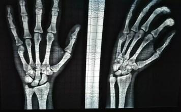Пукнати и счупени кости