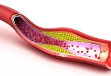 Атеросклерозата