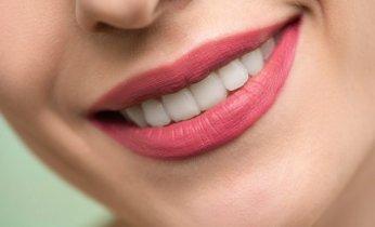 10 Remedios Caseros Totalmente Naturales Para el Blanqueamiento Dental 6