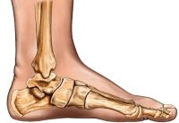 Plantar Fasciitis Heel Pain