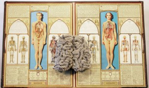 Mental Ilness, the Brain's Black Magic by Judy Crawford