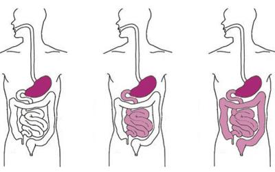 La prolifération bactérienne intestinale de l'intestin grêle ( SIBO )