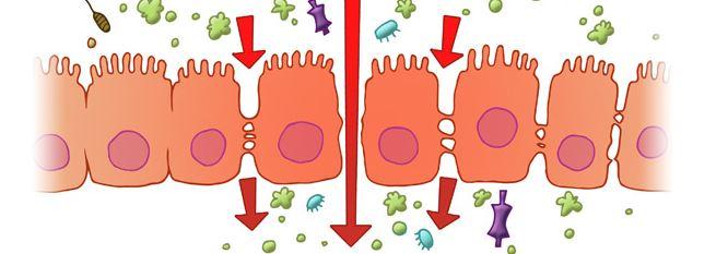 Le syndrome de l'intestin perméable