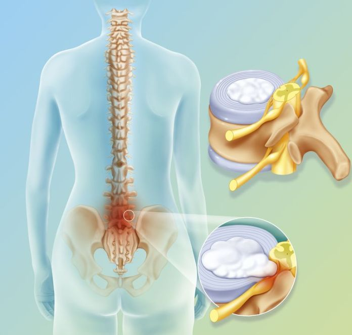 Herniated disc diagram.. BSIP/UIG/Universal Images Group/Getty Image