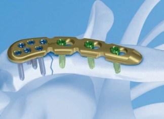 ostéosynthèse de la clavicule