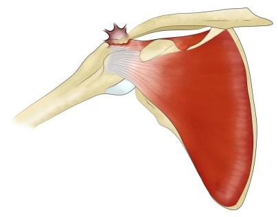 Conflit sous-acromial : le bec de l'acromion frotte contre le tendon du sus-épineux.