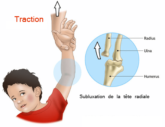 pronation douloureuse coude