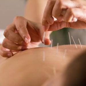 acupuncture.1