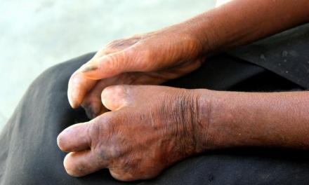Lèpre: réduire la durée des traitements sans perdre en efficacité
