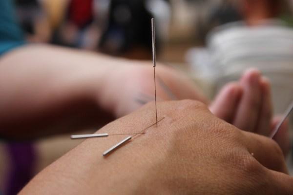 Photographie en gros plan d'une main avec des aiguilles d'acupuncture dessus
