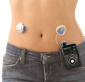 La pompe à insuline - Santélynes