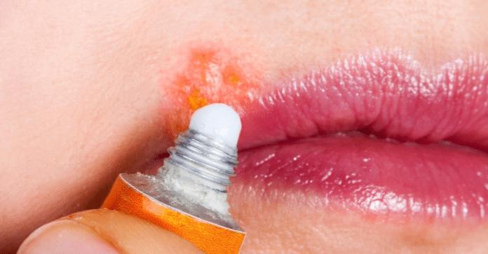 como fazer a herpes labial secar mais rapido