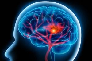 brain having a stroke