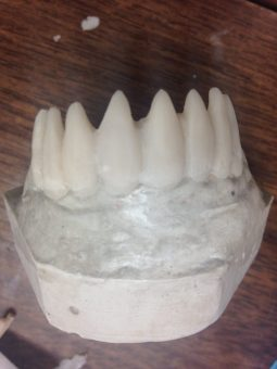 Acrylic Teeth Creation