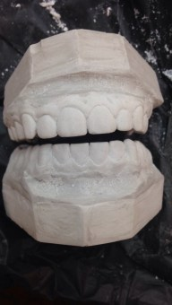 Teeth Cast
