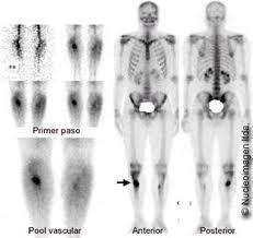 osteoma osteoide 10