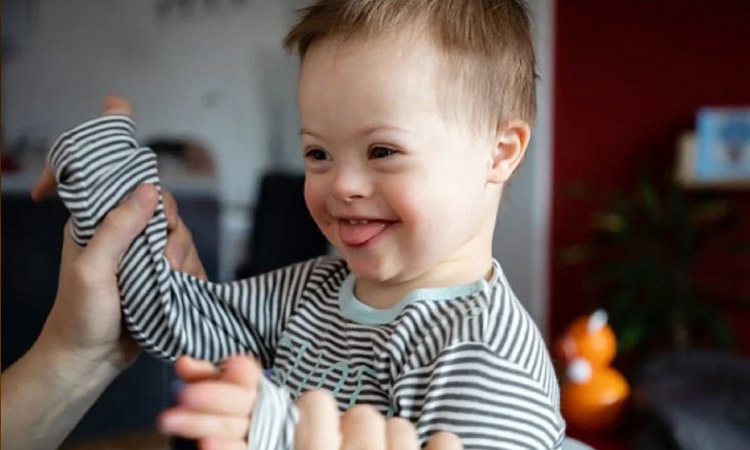 down syndrome also known as trisomy 21 causes and symptoms in marathi