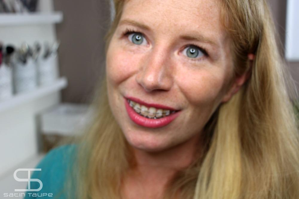 mon-traitement-orthodontique-apres-6-mois