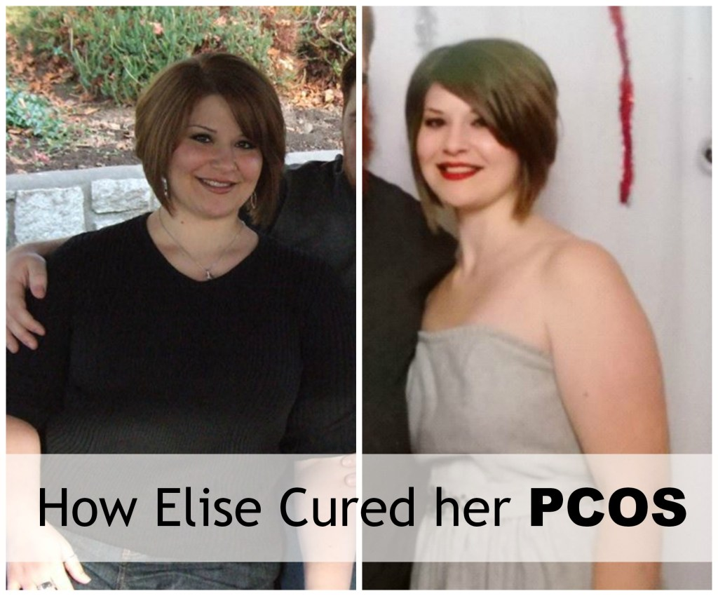 How Elise Reversed PCOS