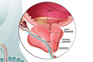 Novembro Azul 2019: O que é a próstata e para que ela serve?   Veja Saúde