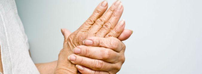 Parecer positivo para filgotinib no tratamento da artrite reumatóide