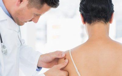 Melanoma: aprenda a identificar