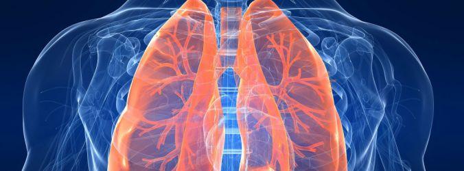 Brensocatib reduz exacerbações em doentes com bronquiectasia