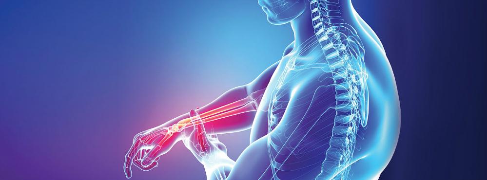 Tratamento com inibidor canakinumab retarda progressão da osteoartrite