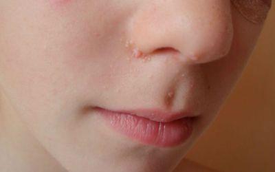 Quais as doenças da pele mais frequentes nas crianças?