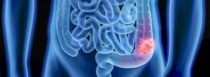 Diabetes tipo 2 associado a risco aumentado de cancro colorretal