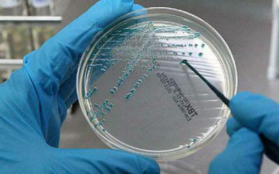 Bactéria escapa de laboratório na China e infeta mais de 3.000 com brucelose