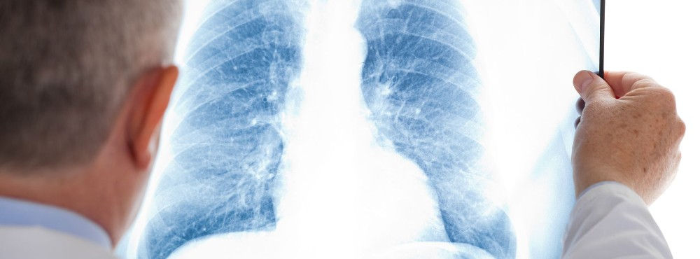 Sarcoidose pode aumentar risco de insuficiência cardíaca e mortalidade