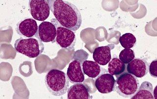 Remover termo: Leucemia Linfoblástica Aguda Leucemia Linfoblástica Aguda