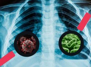 covid, tuberculose