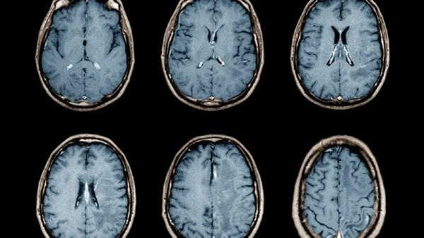 cérebro - hipertensão