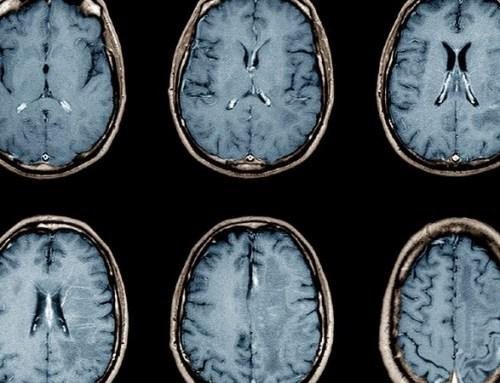 SARS-Cov-2 não infeta o cérebro embora cause danos, diz estudo